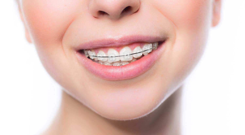 Ortodoncia con brackets: convencional y Damon